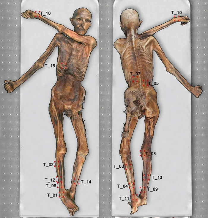 Otzi Mummy Tattoos